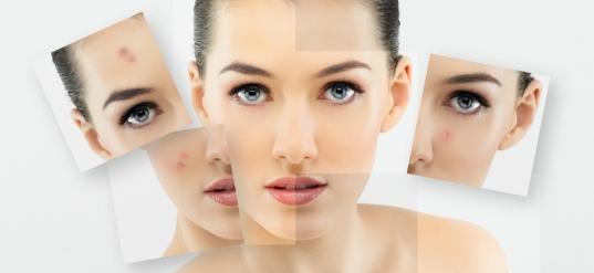 Mẹo chăm sóc da nhờn và mụn hiệu quả tại nhà
